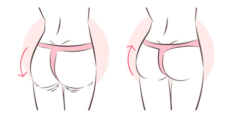 beauty cartoon woman with butt implant before and after Illustration