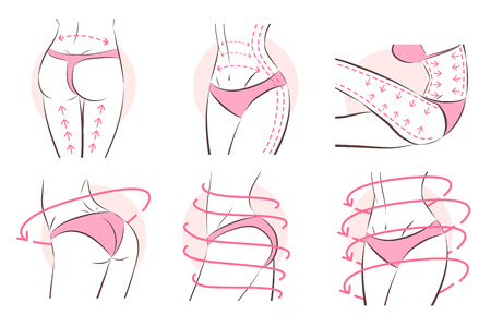 Surgical lines for  liposuction on beautiful woman body Illustration