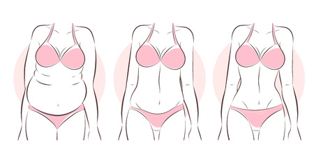 cartoon woman body before and after liposuction or weight loss concept