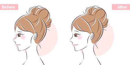 woman face before and after cosmetic nose surgery