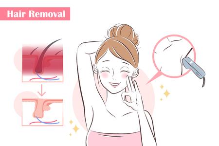 femme de bande dessinée enlever les cheveux avec un laser sous ses bras Vecteurs