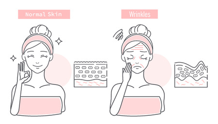 Comparison between a woman with normal skin and wrinkled skin Stock Illustratie