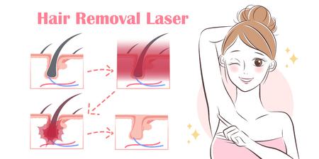 femme de bande dessinée enlever les cheveux avec un laser sous ses bras