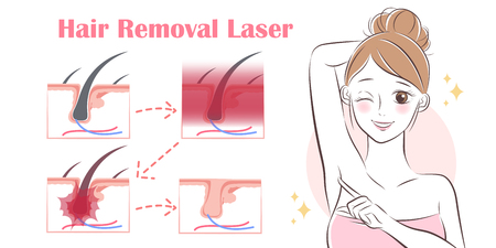 cartoon woman remove hair with laser under her arms Illustration