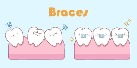 cute cartoon tooth with brace correction concept on blue background