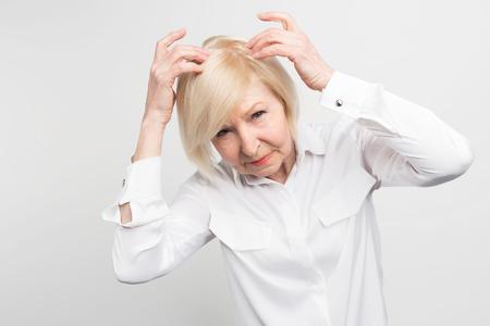 この女性は頭から髪を失う問題があります。彼女はいくつかの治療が必要です。さもなければ、彼女はできるだけ早くかつらを着用し始める必要が 写真素材