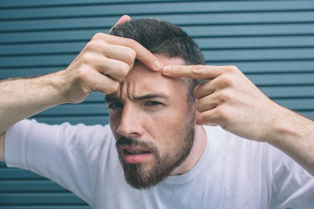 Young man is squeezing pimple on face. H is looking on camera. Isolated on striped and blue background.