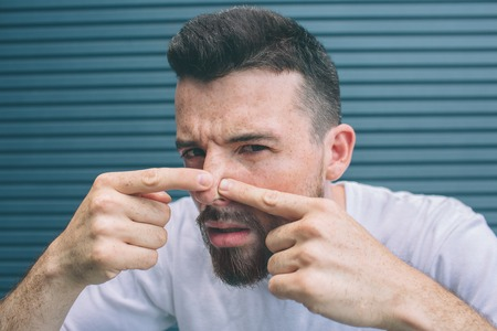 Guy is squeezing pimples on his nose. He is looking close on camera. Isolated on striped and blue background. Stok Fotoğraf