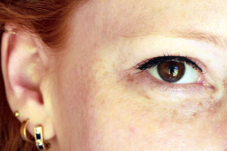 freckle: Portrait of a young woman with red hair and brown eyes
