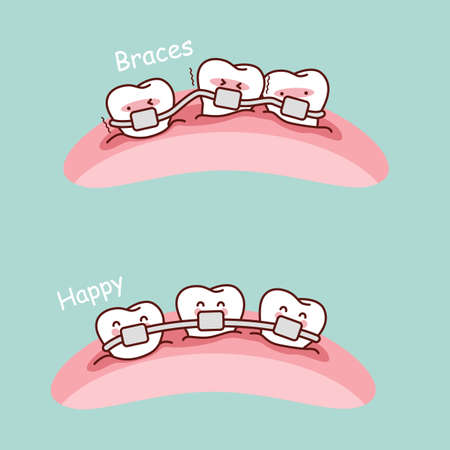 tooth cartoon: cute cartoon tooth braces, great for health dental care concept