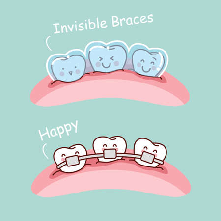 tooth cartoon: cartoon tooth with invisible braces, great for health dental care concept Illustration
