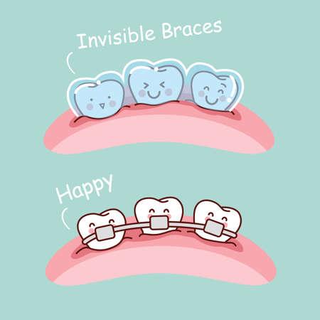 diente caricatura: diente de dibujos animados con aparatos invisibles, ideal para concepto de cuidado de la salud dental
