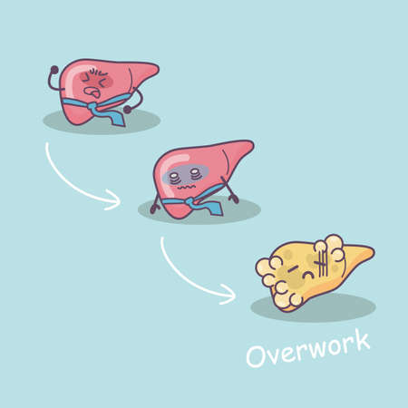 overwork: overwork damage liver, great for health care concept Stock Photo