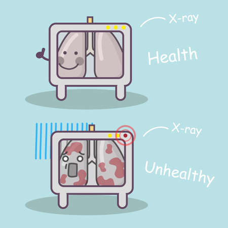 sick people: healthy vs unhealthy lung via x-ray, great for health care concept
