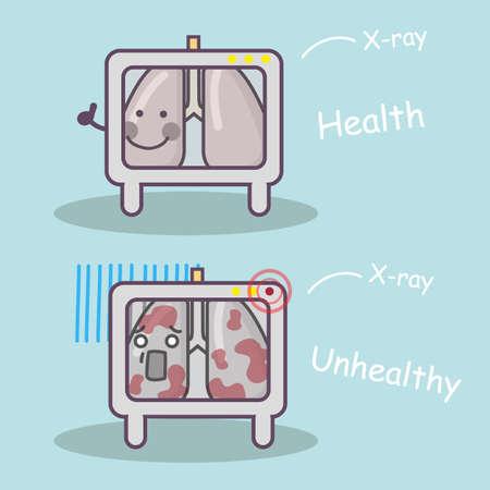 personas enfermas: salud vs insalubres de pulm�n a trav�s de rayos x, por concepto de cuidado de la salud