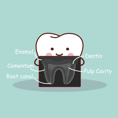 root canal: cartoon tooth with X ray, great for health dental care concept