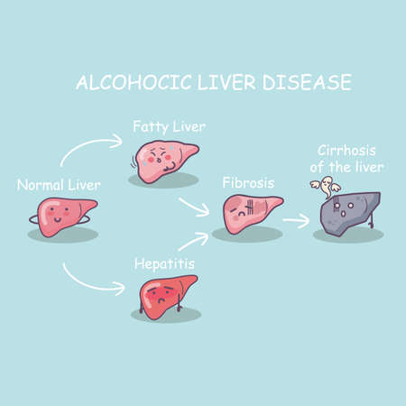 alimentary: The stage of Health liver vs cirrhosis liver, great for health care concept Illustration