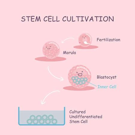 espermatozoides: Stem el cultivo de células, la fertilización in vitro. mostrando infografía detallada de la fertilización de los huevos de laboratorio, gran concepto de embarazo Vectores