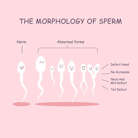 nude male: The morphology of the sperm. Normal and abnormal sperm structure.