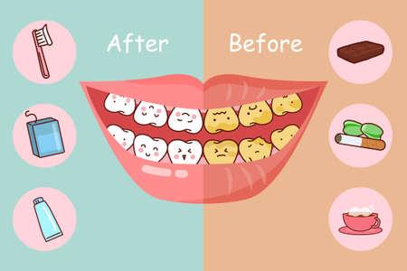 muela caricatura: Antes y despu�s de los dientes, grandes para el concepto de cuidado dental de la salud