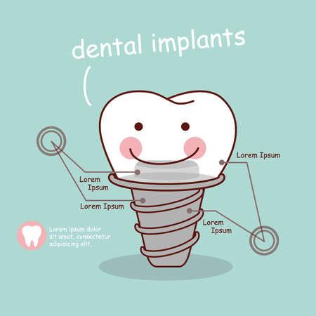 muela caricatura: tratamiento con implantes de dientes de dibujos animados lindo, grande para el concepto de cuidado de la salud dental