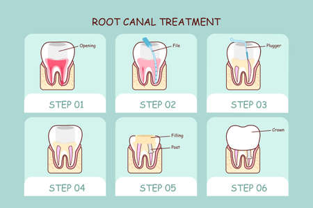 root canal: cartoon tooth root canal treatment , great for dental care concept