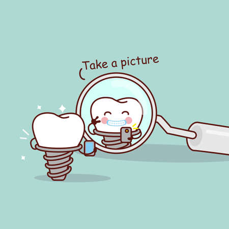 dental mirror: cute cartoon implant tooth take a picture in the dental mirror, great for health dental care concept
