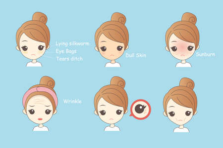 wrinkle: Face Skin Problem - cartoon woman unhappy with her eyebags and wrinkle