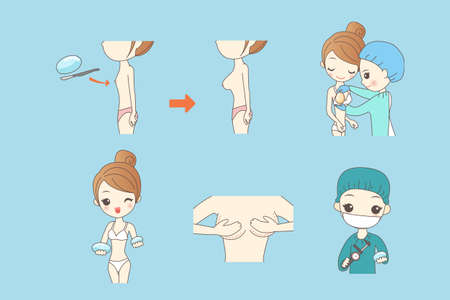 breast implant: cartoon woman doing breast implant, beauty Illustration