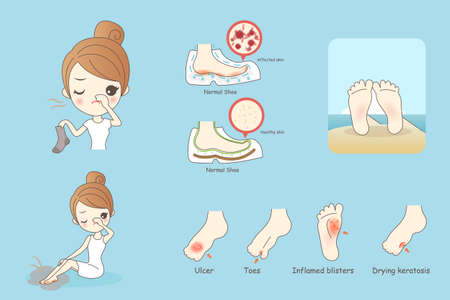 rash: cartoon woman with athlete foot, Healthy Lifestyle Concept Illustration