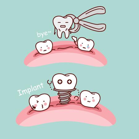 schattig cartoontand uittreksel en implantaat, ideaal voor gezondheidszorg tandheelkundige zorg concept Stock Illustratie