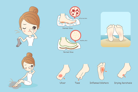 cartoon woman with athlete foot, Healthy Lifestyle Concept Illustration