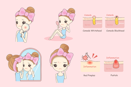 pimples: cartoon skin care woman with acne and magnifying glass check it, beauty