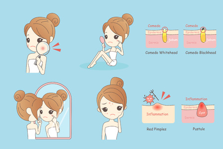 facial care: cartoon skin care woman with acne and magnifying glass check it, beauty