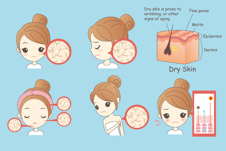 cartoon woman face dry skin, Healthy Lifestyle Concept Illustration