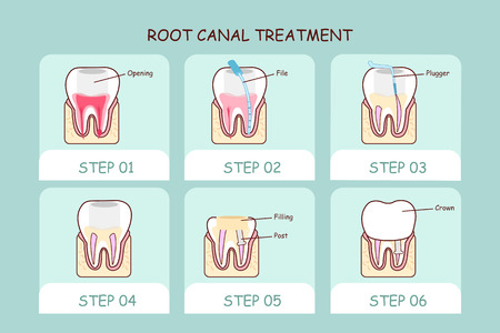 root: cartoon tooth root canal treatment , great for dental care concept