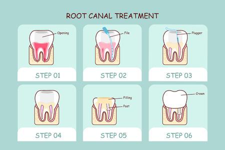 cartoon zębów leczenie kanałowe, doskonale nadaje się do pielęgnacji zębów koncepcji Ilustracje wektorowe