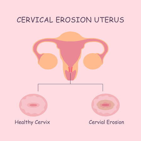 uterus and cervial erosion, great for health care concept Illustration
