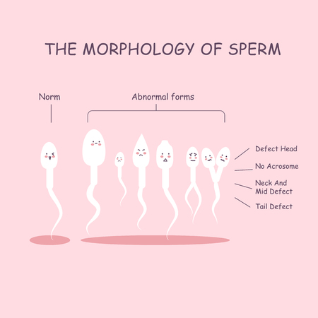 The morphology of the sperm. Normal and abnormal sperm structure.