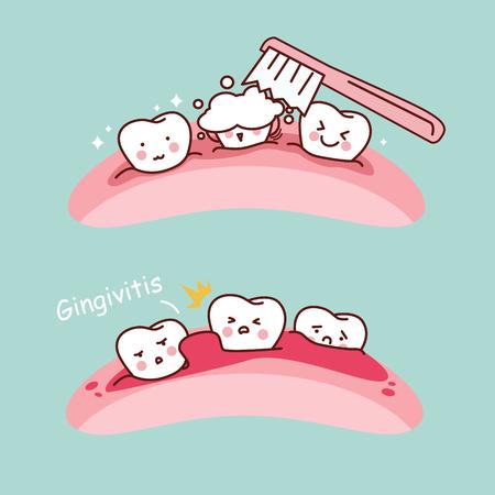 Cartoon Zahnbürste und Gingivitis, groß für Gesundheit Zahnpflege-Konzept Standard-Bild - 70306403