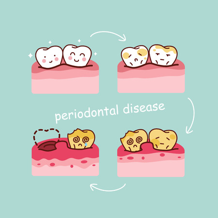 cartoon tooth periodontal disease, great for health dental care concept