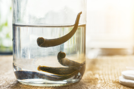 Medicinal Leeches on table before therapy.