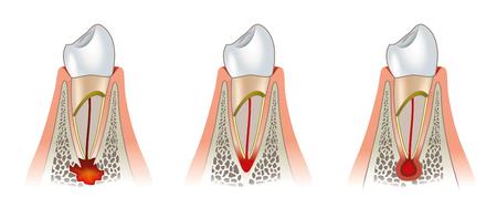 Periodontitis: Diseases of teeth dental scheme. Periodontitis