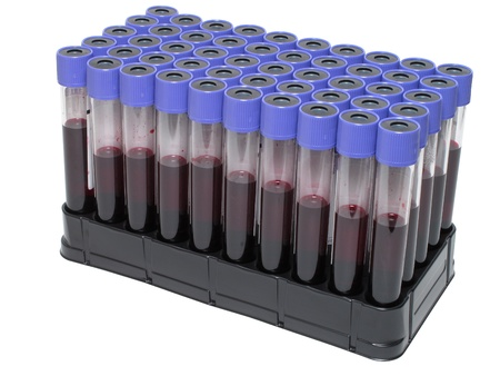phlebotomy: A rack of vacuum venipuncture test tubes filled with blood  Isolated on a while background  Stock Photo
