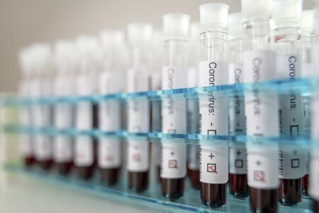 Positive results of corona virus tests. Many blood test tube in special holder in the laboratory. Foto de archivo
