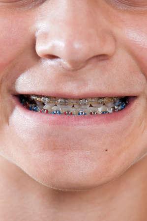 Boy wearing braces close up photo