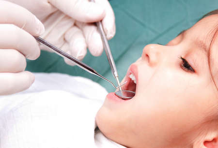 Photo of young girl, open mouth during oral inspection with mirror and hook
