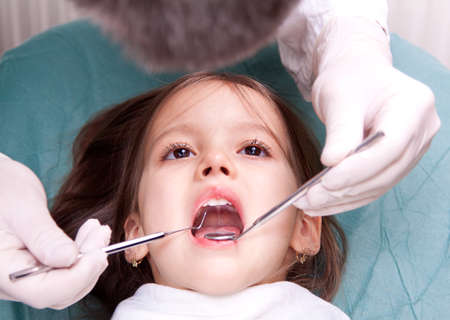 mouth open: at the dentist - little girl have dental examination Stock Photo
