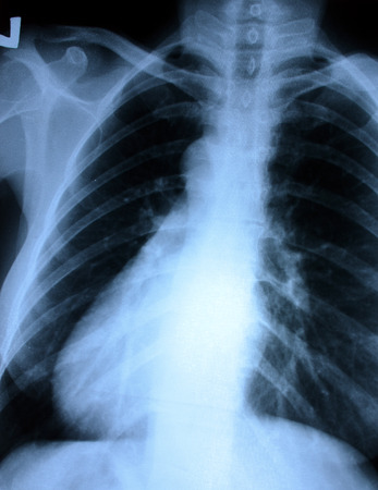 chest xray: Chest x-ray Stock Photo