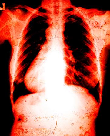 chest xray: Chest x-ray danger